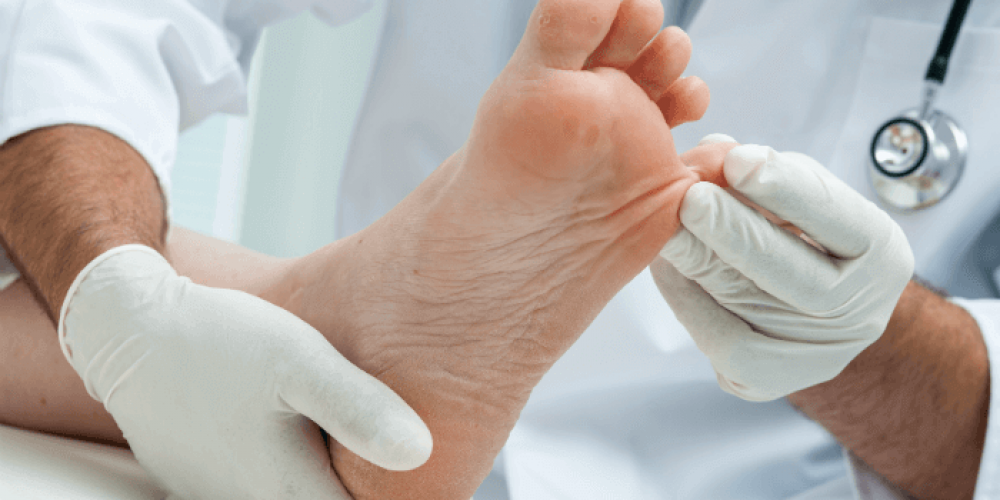 Athlete's Foot Remedy in Home